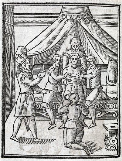 Caesarian section, 17th century artwork